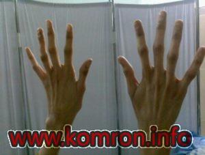 arahnodaktiliya-pri-gomotsistinurii-300x227