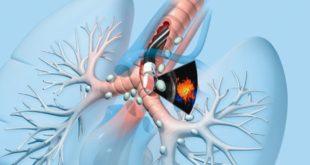 bronhoskopiya