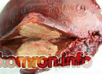 alveokkoz