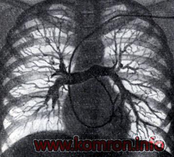 angiopulmonografia