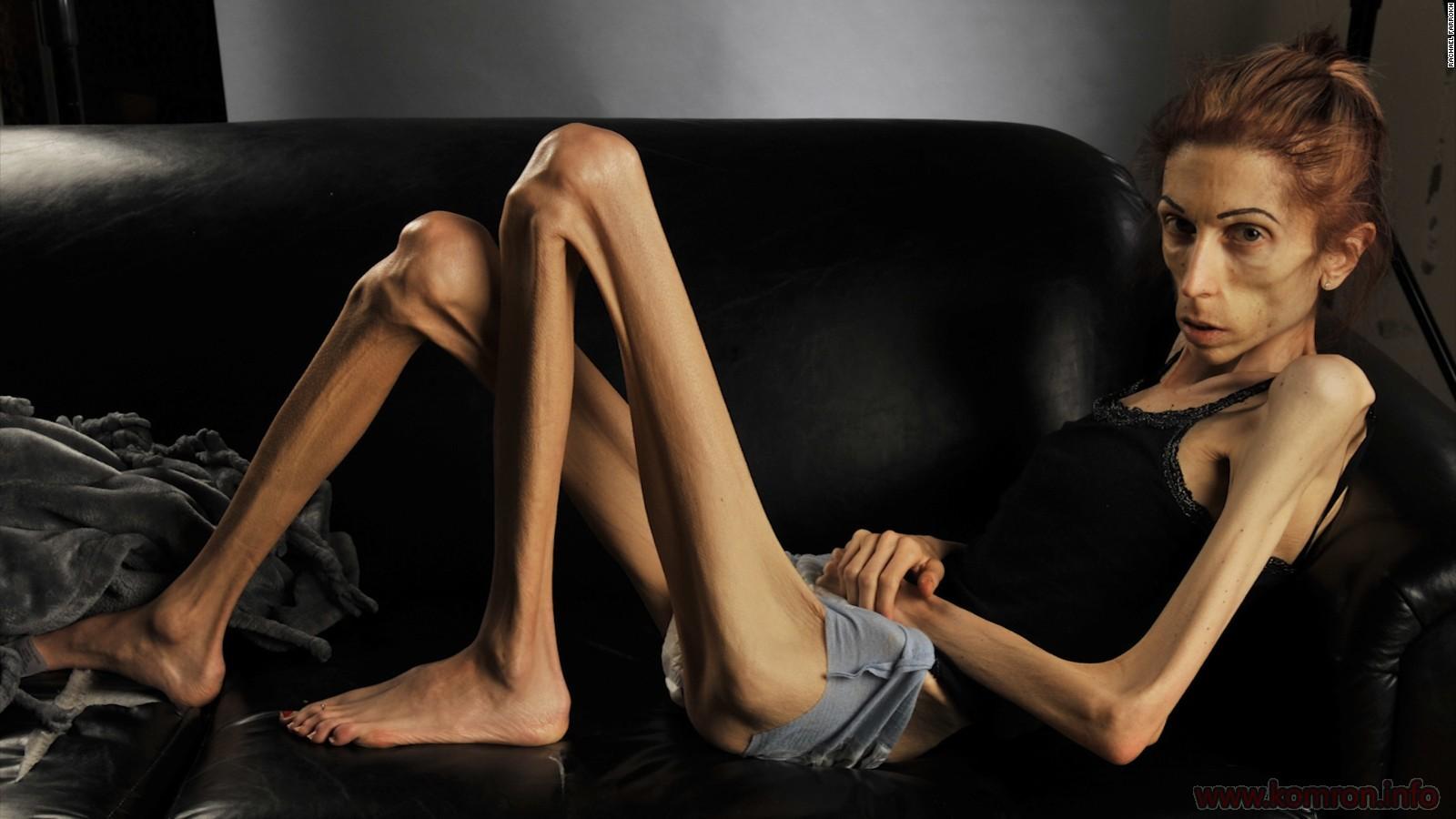 anorekciya