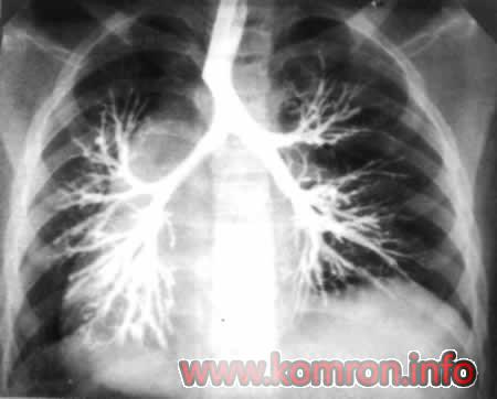 bronhoektaz