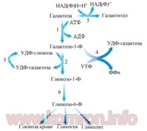 galaktozuriya