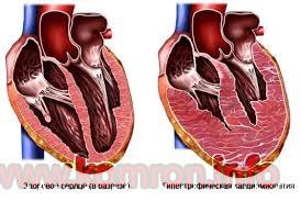kardiomegaliya