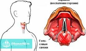 laringostenoz
