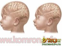mikrocefaliya