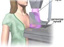 mamografiya