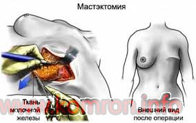 mastektomiya