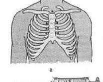 mediastinografiya