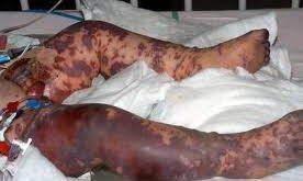 meningokokkemiia