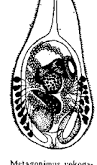 metagonimoz