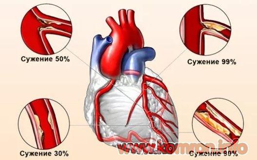 Сердечно сосудистые заболевания (Ишемия сердца)