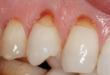 dentin